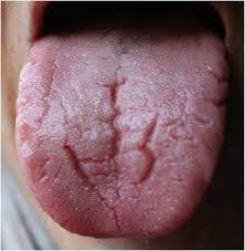 lengua 3
