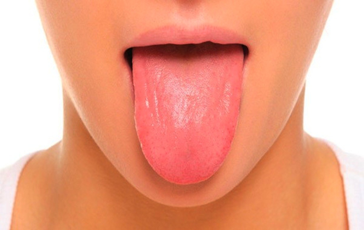 ¿Qué dice tu lengua sobre tu salud?